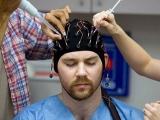 Симптомы и лечение эпилепсии